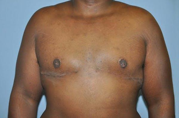 Gynecomastia Gallery - Patient 6389434 - Image 2
