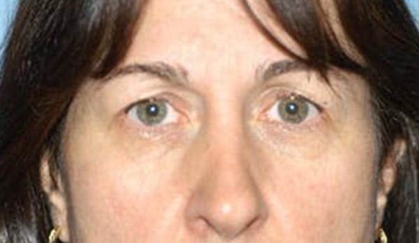 Eyelid Lift Gallery - Patient 6389476 - Image 1