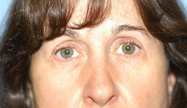 Eyelid Lift Gallery - Patient 6389476 - Image 2