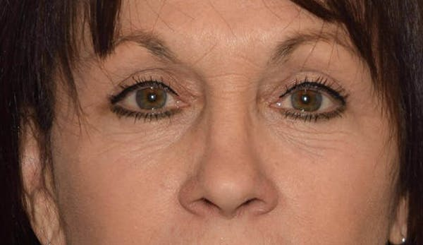 Eyelid Lift Gallery - Patient 6389463 - Image 2