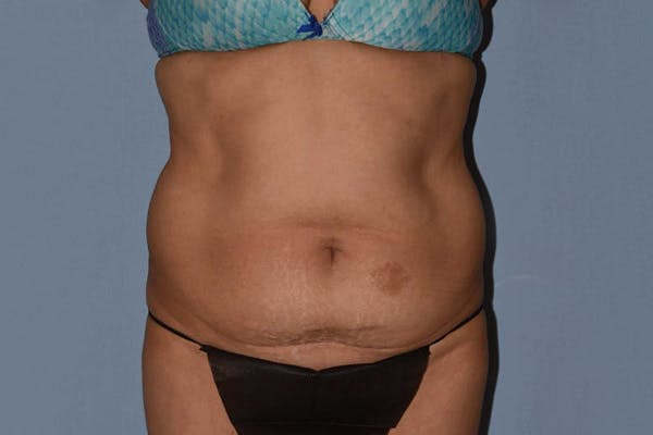 Tummy Tuck Gallery - Patient 14281235 - Image 1