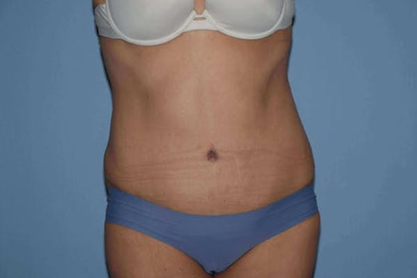 Tummy Tuck Gallery - Patient 14281235 - Image 2