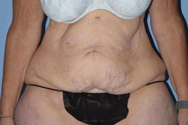 Tummy Tuck Gallery - Patient 14281279 - Image 1