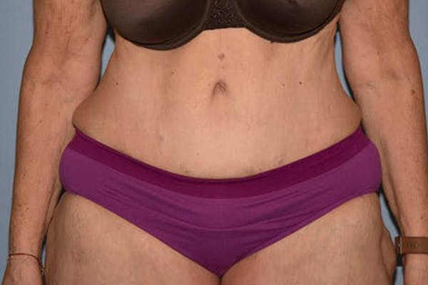 Tummy Tuck Gallery - Patient 14281279 - Image 2