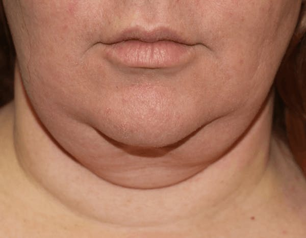 Liposuction Gallery - Patient 14281447 - Image 1