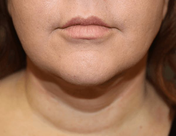 Liposuction Gallery - Patient 14281447 - Image 2