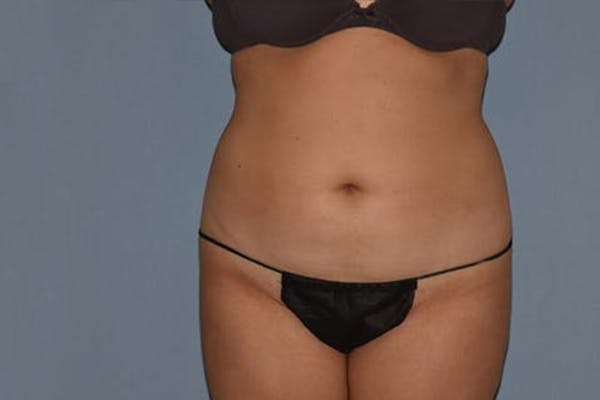Liposuction Gallery - Patient 14281451 - Image 1