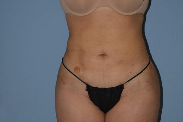 Liposuction Gallery - Patient 14281451 - Image 2