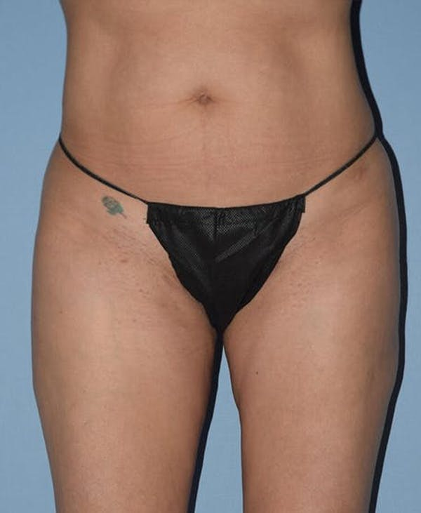 Liposuction Gallery - Patient 14281452 - Image 2