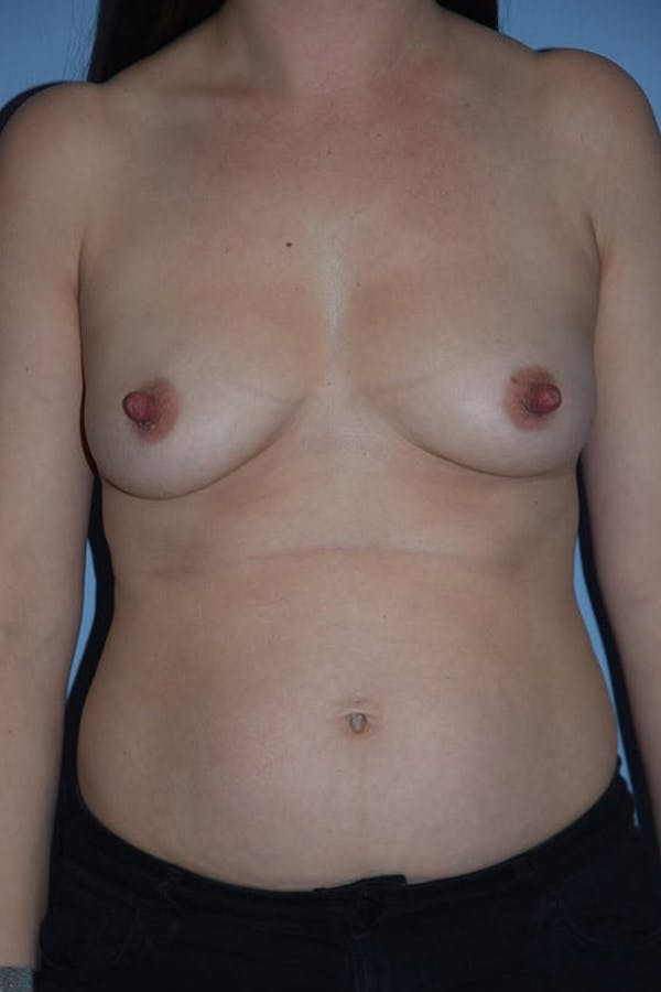 Mommy Makeover Gallery - Patient 14281462 - Image 1