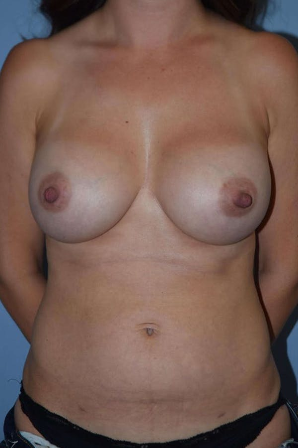 Mommy Makeover Gallery - Patient 14281462 - Image 2