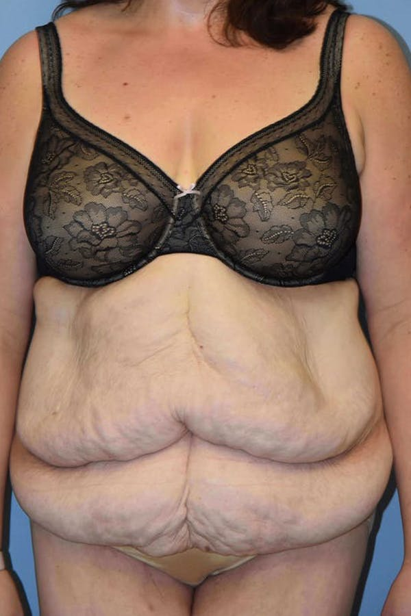 After Weight Loss Surgery Gallery - Patient 14281497 - Image 1