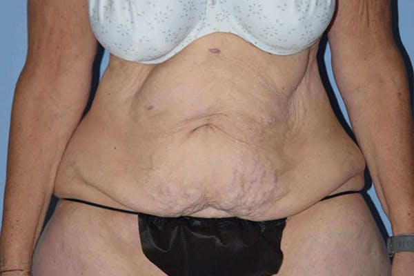 After Weight Loss Surgery Gallery - Patient 14281500 - Image 1