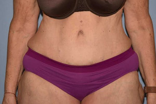 After Weight Loss Surgery Gallery - Patient 14281500 - Image 2