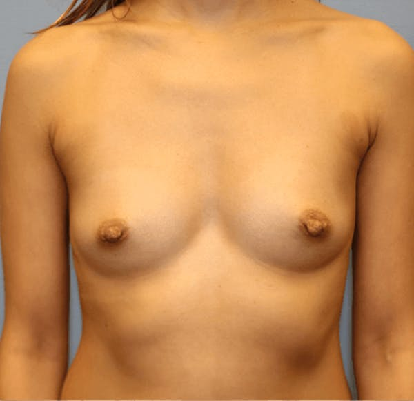 Breast Augmentation Gallery - Patient 14281567 - Image 1