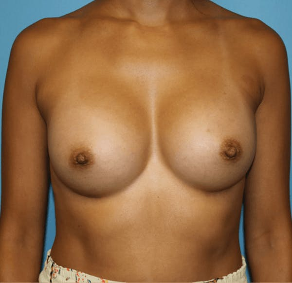 Breast Augmentation Gallery - Patient 14281567 - Image 2