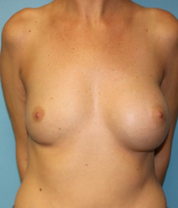 Breast Revision Gallery - Patient 14281712 - Image 1