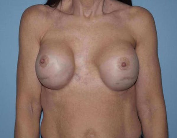 Breast Revision Gallery - Patient 14281717 - Image 1