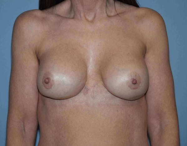 Breast Revision Gallery - Patient 14281717 - Image 2