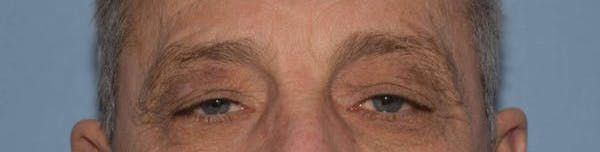 Eyelid Lift Gallery - Patient 14281801 - Image 1