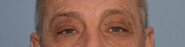 Eyelid Lift Gallery - Patient 14281801 - Image 2