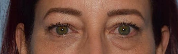 Eyelid Lift Gallery - Patient 14281804 - Image 1