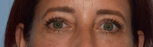 Eyelid Lift Gallery - Patient 14281804 - Image 2