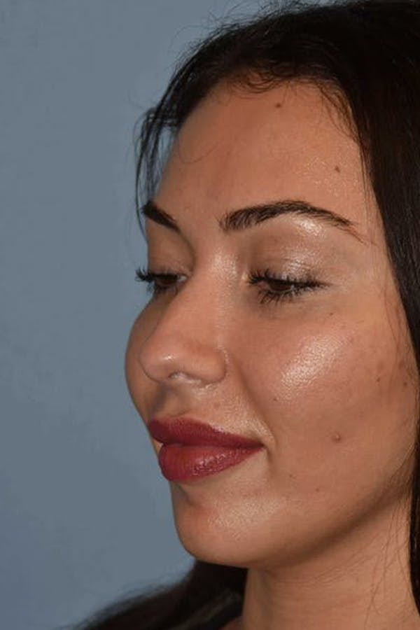 Nonsurgical Rhinoplasty Gallery - Patient 6389440 - Image 1