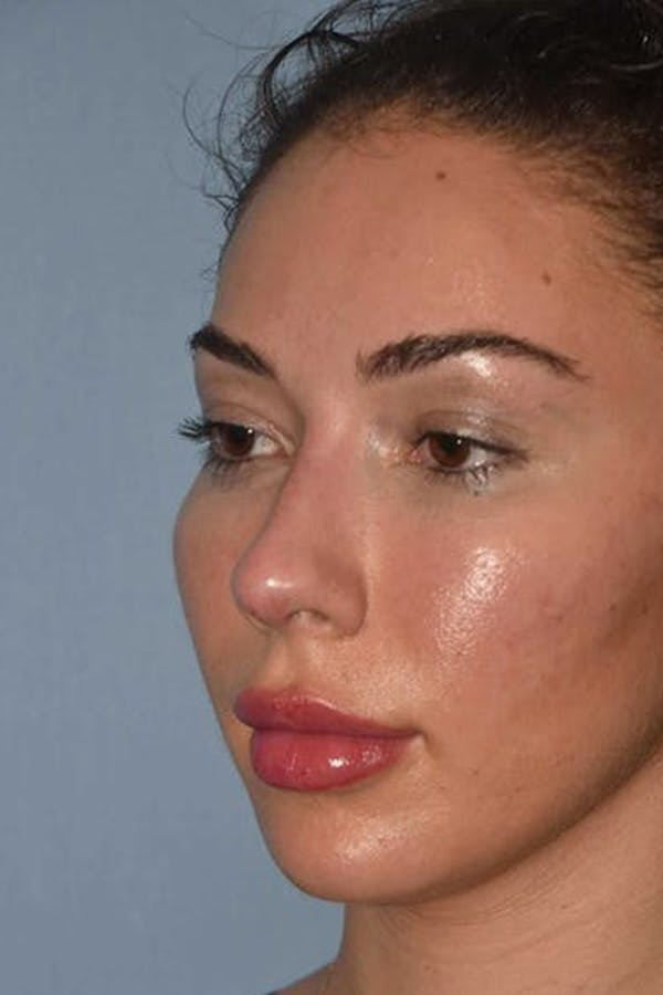 Nonsurgical Rhinoplasty Gallery - Patient 6389440 - Image 2