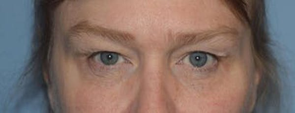 Eyelid Lift Gallery - Patient 14281795 - Image 1