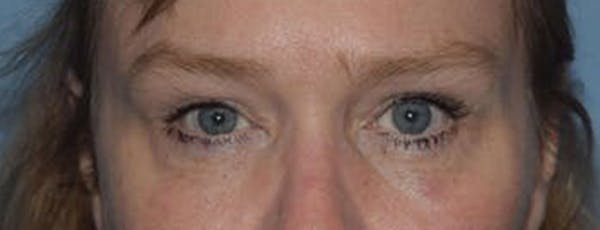 Eyelid Lift Gallery - Patient 14281795 - Image 2