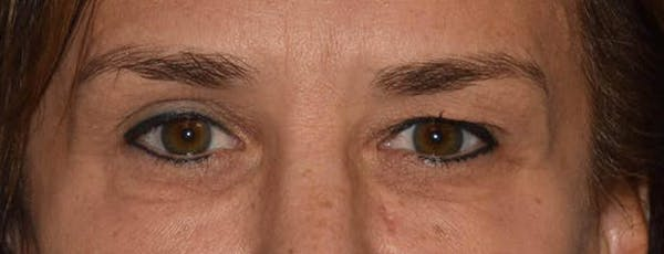 Eyelid Lift Gallery - Patient 14281796 - Image 1