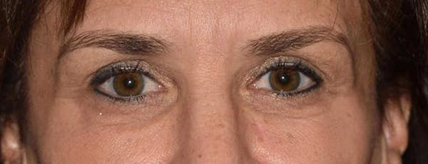 Eyelid Lift Gallery - Patient 14281796 - Image 2
