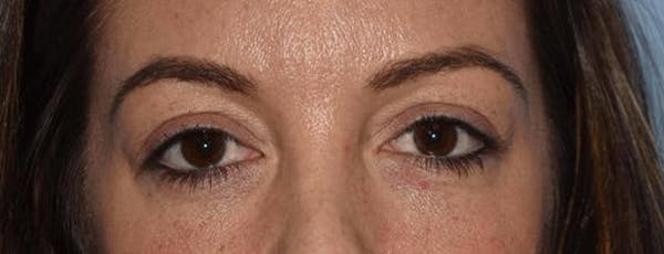 Eyelid Lift Gallery - Patient 14281798 - Image 1