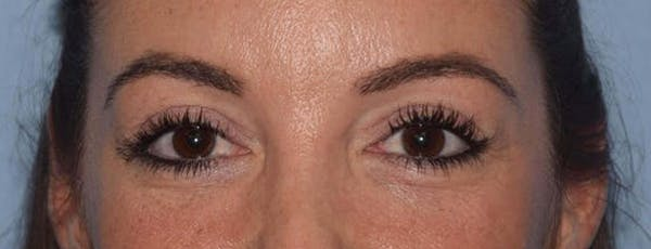 Eyelid Lift Gallery - Patient 14281798 - Image 2