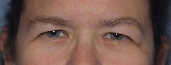 Eyelid Lift Gallery - Patient 14281799 - Image 1