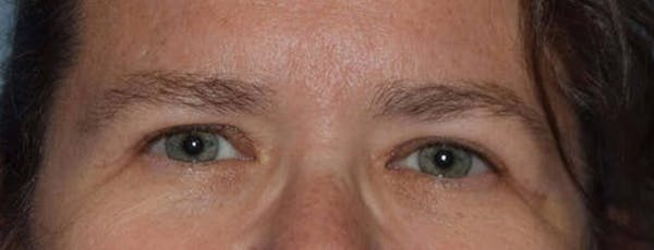 Eyelid Lift Gallery - Patient 14281799 - Image 2