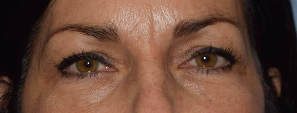 Eyelid Lift Gallery - Patient 14281800 - Image 1