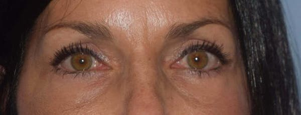 Eyelid Lift Gallery - Patient 14281800 - Image 2