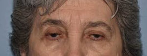 Eyelid Lift Gallery - Patient 14281802 - Image 1
