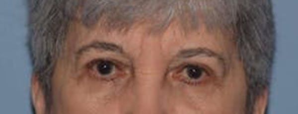 Eyelid Lift Gallery - Patient 14281802 - Image 2