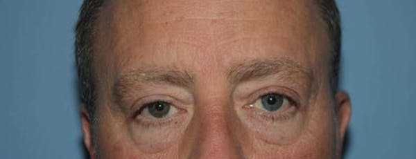 Eyelid Lift Gallery - Patient 14281803 - Image 1