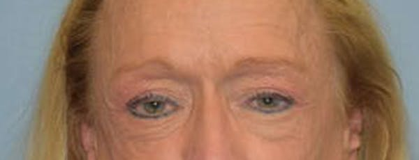 Eyelid Lift Gallery - Patient 14281805 - Image 1