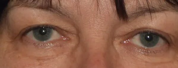 Eyelid Lift Gallery - Patient 14281811 - Image 1