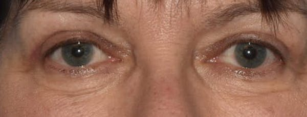 Eyelid Lift Gallery - Patient 14281811 - Image 2