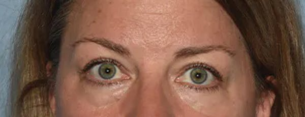 Eyelid Lift Gallery - Patient 17337874 - Image 1