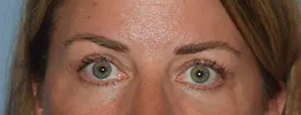 Eyelid Lift Gallery - Patient 17337874 - Image 2