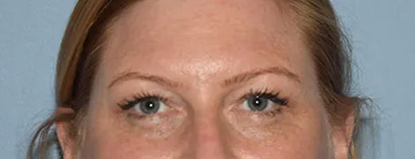 Eyelid Lift Gallery - Patient 17337875 - Image 1