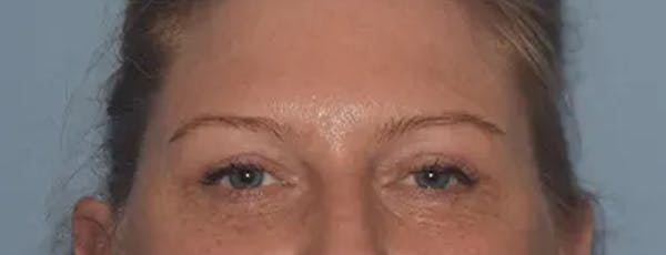 Eyelid Lift Gallery - Patient 17337875 - Image 2
