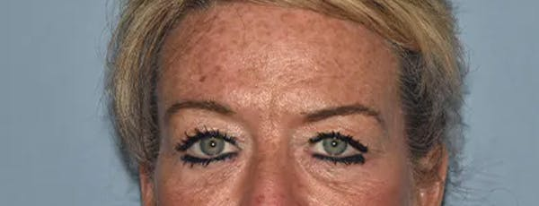 Eyelid Lift Gallery - Patient 17337876 - Image 1
